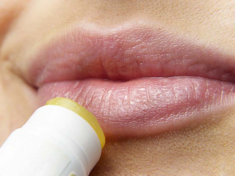 What is a Versa Lip Filler and should you go for it