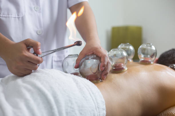 Traditional Chinese Medicine Treatment - Acupuncture vacuum therapy
